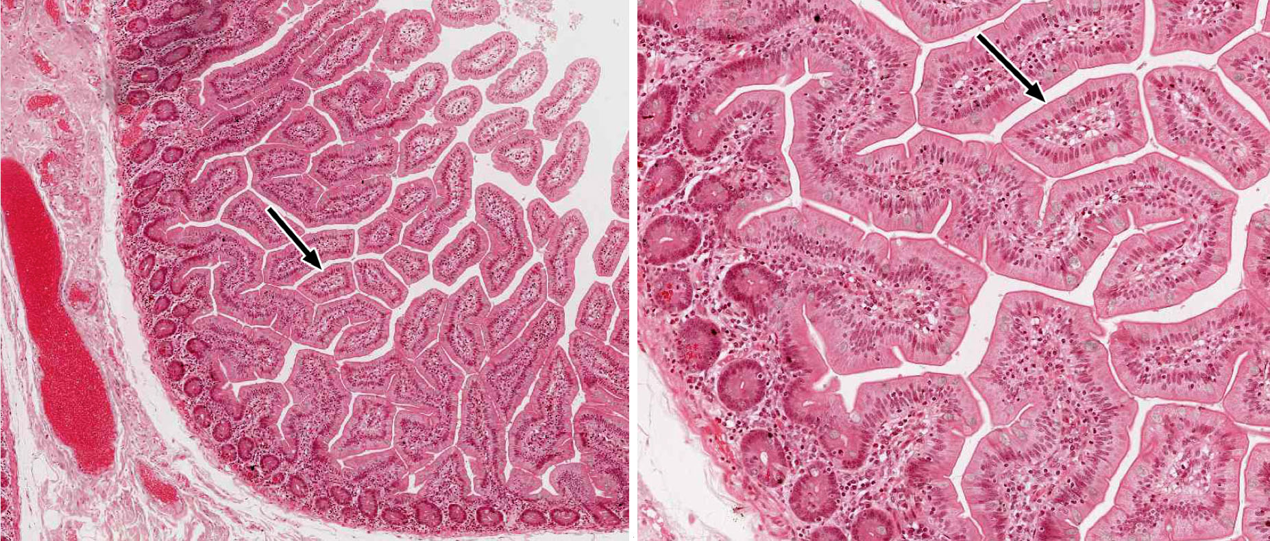 Small And Large Intestine Histology Simple Animal Cell Diagram Labeled 2 Practice Questions