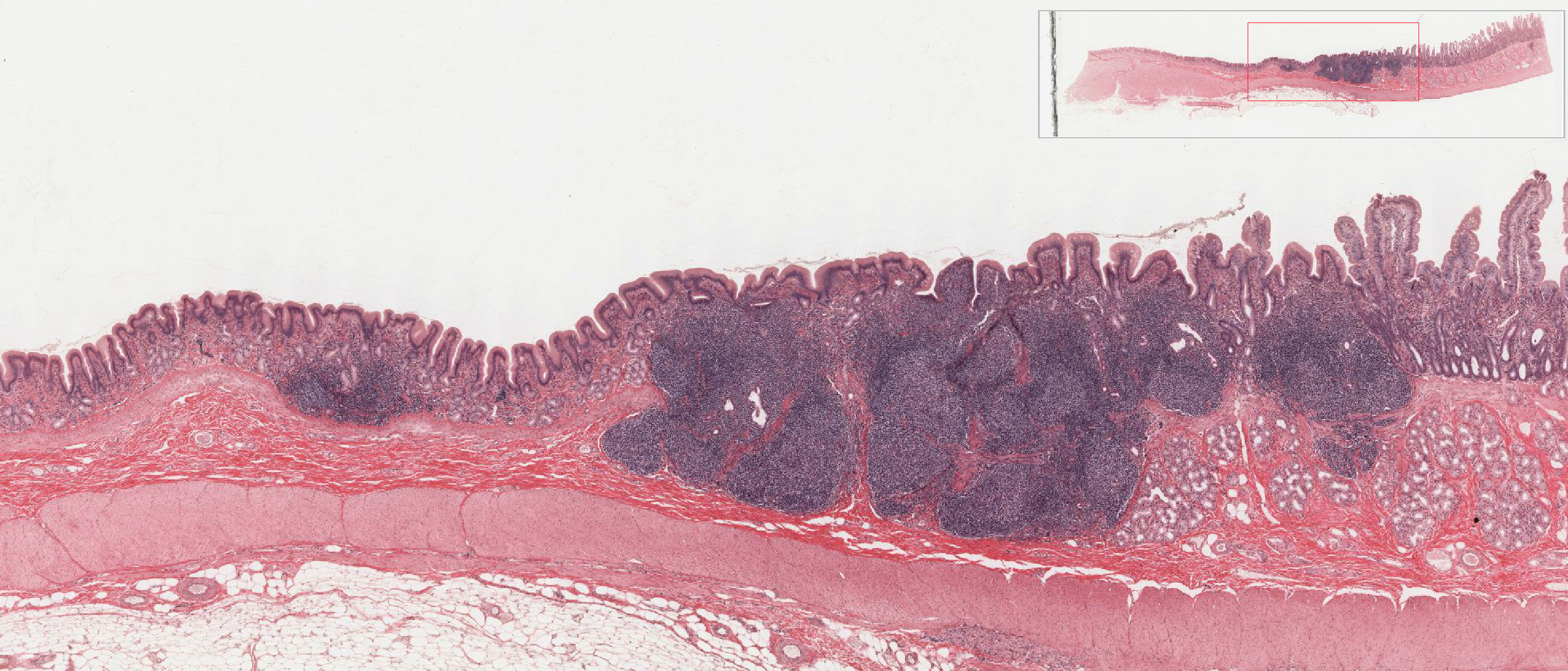 Intestine Tissue