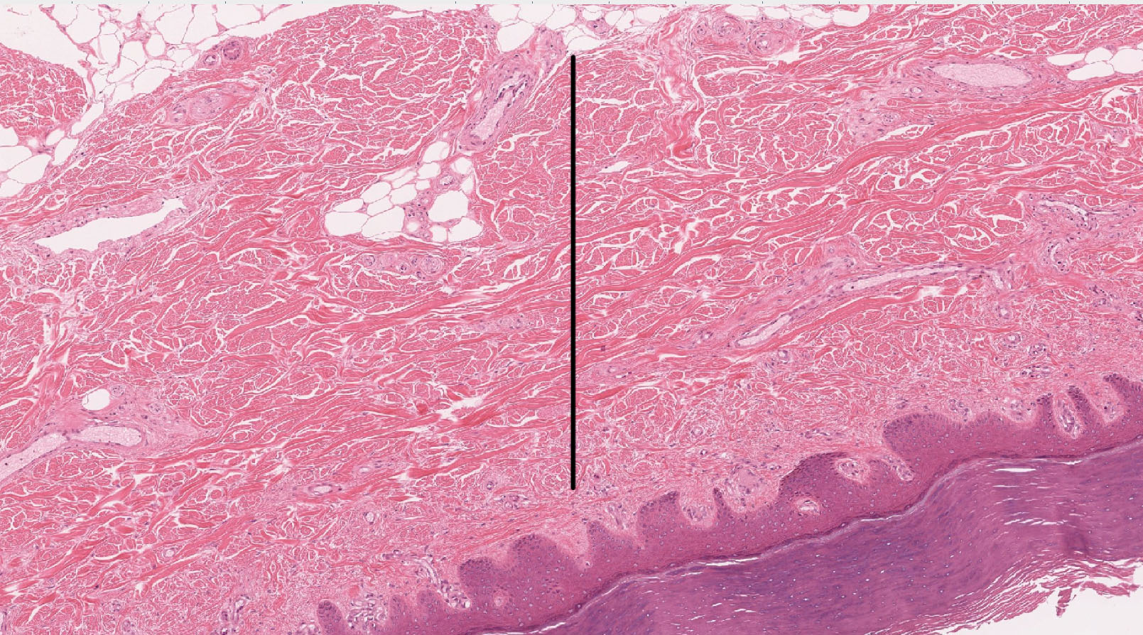 medical questions on the epidermis Practice 2015 mcat sample questions for the first time since 1991, the medical college admission test, or mcat how are the basal layer of the epidermis and the innermost lining of the small intestine similar 1.