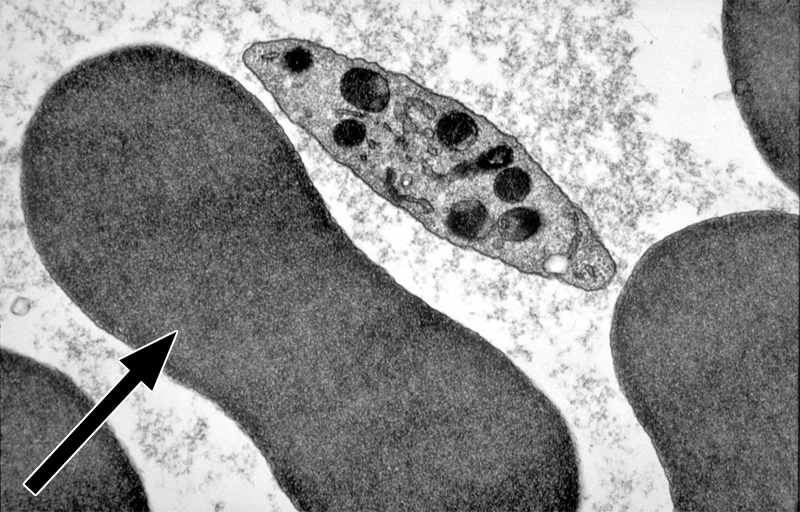 White blood cells electron microscope