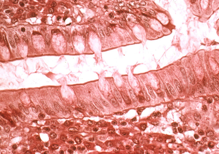 epithelial tissue test questions