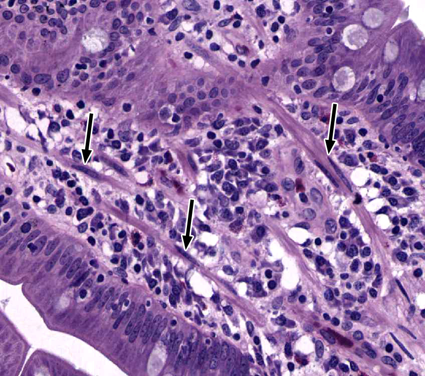Small And Large Intestine Histology