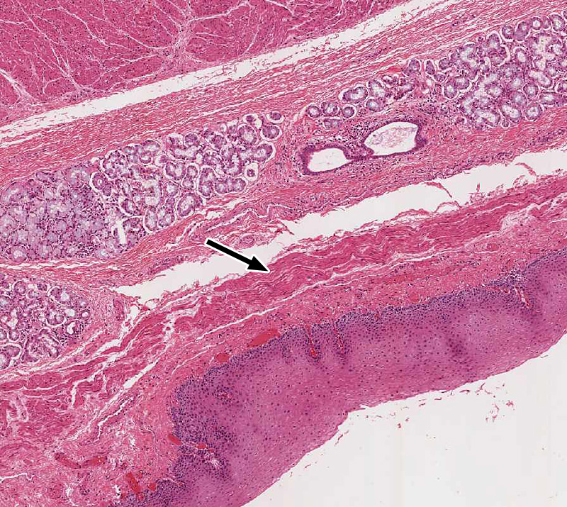 Pharynx Esophagus And Stomach Histology