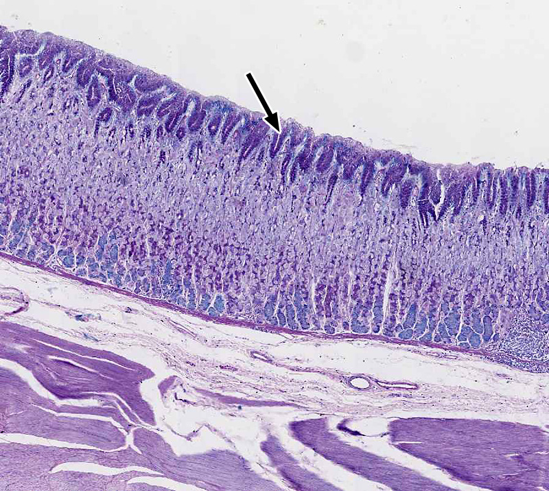 what transition in epithelial type exists at the gastroesophageal junction