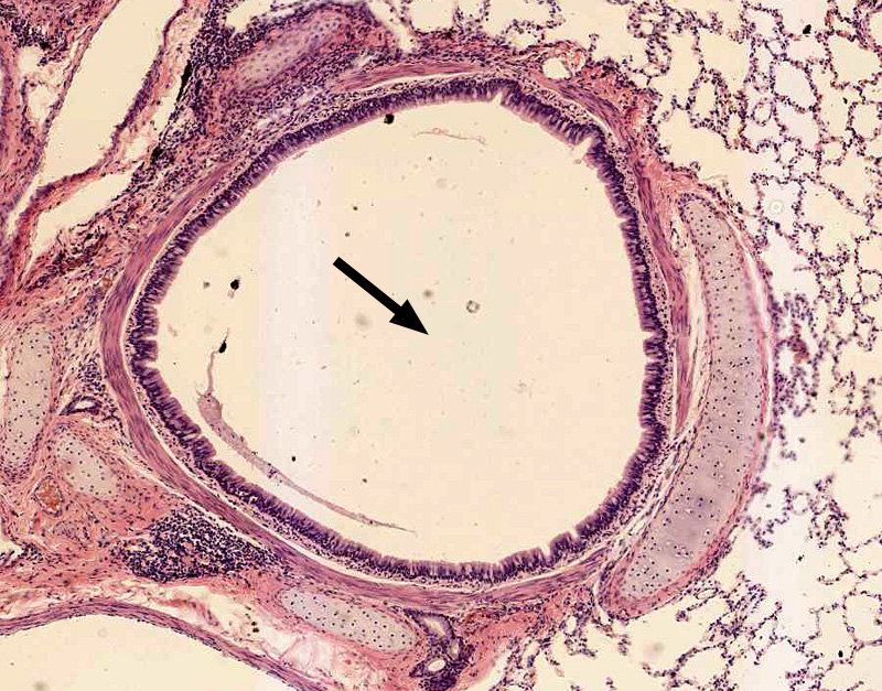 bronchi histology labeled google search res tract - 800×627