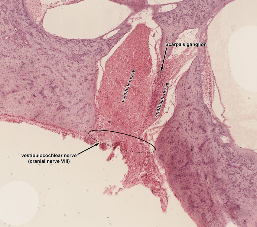Ear histologyUtricle And Saccule Histology